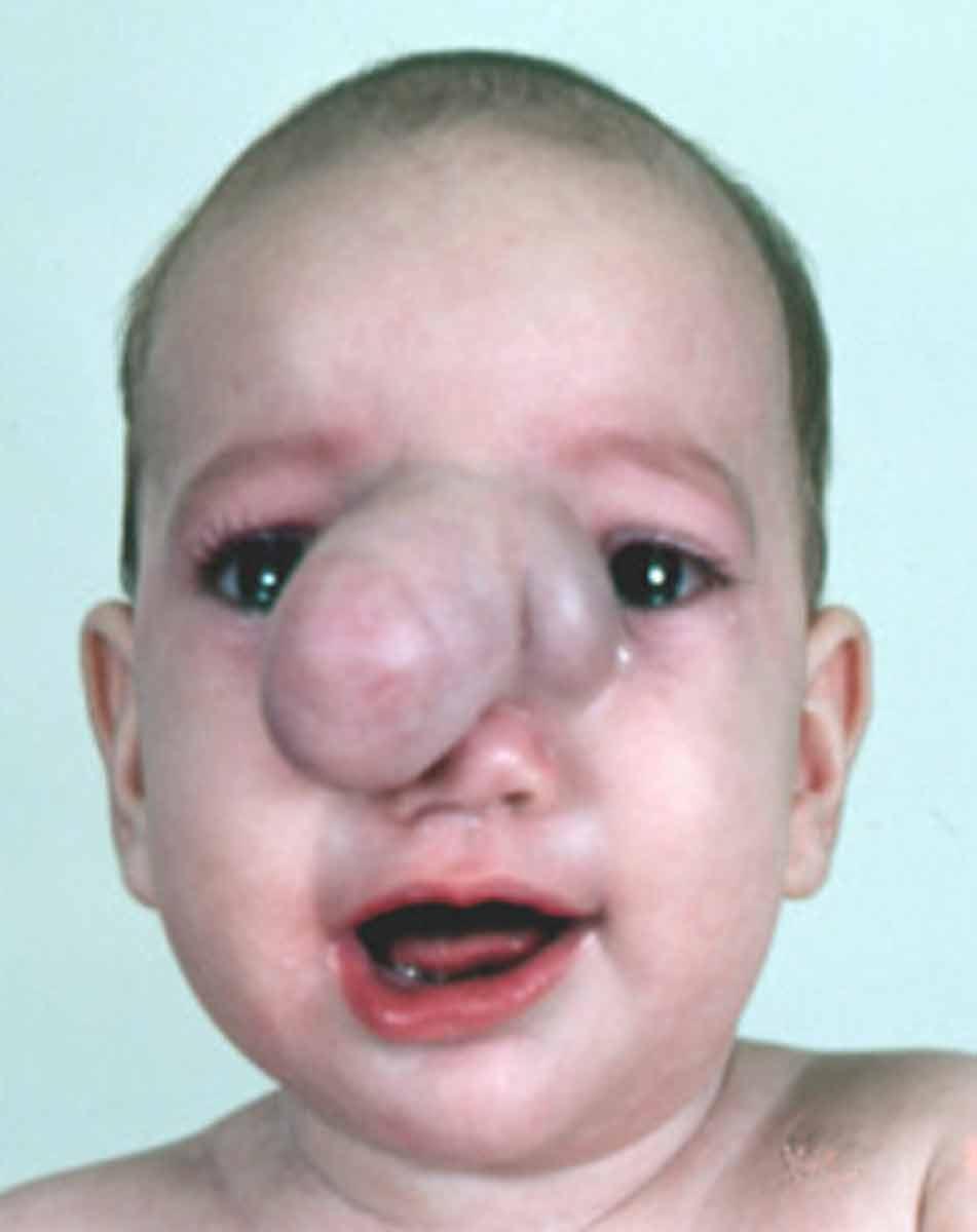 Encephalocele   Hellenic Craniofacial Center  Encephalocele  ...